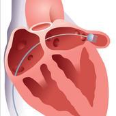 הצנתר חוצה את המחיצת הלב ובאמצעותו ההתקן ממוקם בתוך האוזנית
