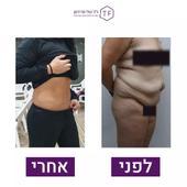 לפני אחרי הסרת עודפי עור לאחר ירידה במשקל