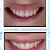 תיקון שיניים שבורות באמצעות ציפויים אסתטיים