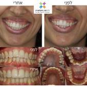 יישור שיניים בשיטת האינויזליין