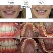 אינוויזליין- יישור שיניים שקוף