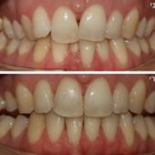 יישור שיניים שקוף בשיטת אינוויזליין