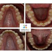 יישור שיניים בשיטת אינוויזליין